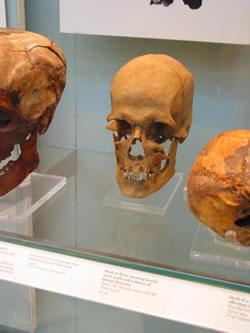 La nutrición y hábitat,  su relación con la enfermedad y muerte del hombre egipcio: ¿una visión realista? (2ª parte)
