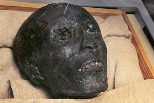 Fig. 2. Cabeza de la momia de Tutankhamon.