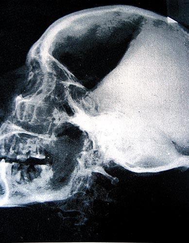 Fig. 10. Radiografía lateral del cráneo de Ramsés II, la sombra en la mandíbula inferior confirma que se debe a un absceso dentario (Harris y Wente, An X-ray Atlas of the Royal Mummies, Chicago, 1980).