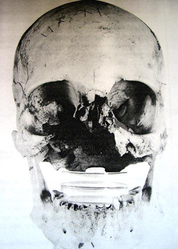 """Fig. 13. Craneofaringioma que destruyó el macizo craniofacial (E. Strouhal, """"Ancient Egyptian Case of Carcinoma"""", Bull. N.Y. Acad. Med. 1978)."""