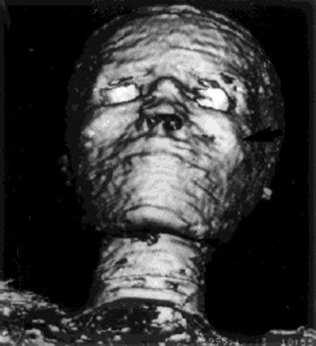 Fig. 2. TAC tridimensional de una momia.