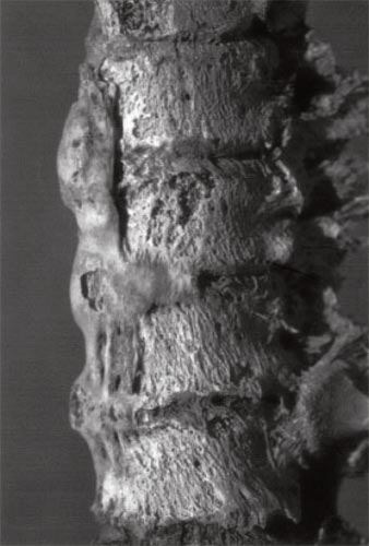 "Fig. 4. Columna vertebral (Hiperostosis esqulética idiopática difusa- DISH): A.R. Zink, W. Grabner & A.G. Nerlich, ""Molecular Identification of Human Tuberculosis in Recent and Historic Bone Tissue Samples: The Role of Molecular Techniques for the Study of Historic Tuberculosis"". American Journal of Physical Anthropology, 126:32–47 (2005)."