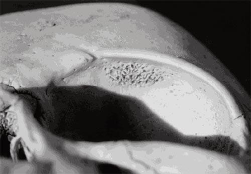 "Fig. 5. Cribra orbitalia, S.I. Fairgrieve & J.E. Molto, ""Cribra Orbitalia in Two Temporally Disjunct Population Samples From the Dakhleh Oasis, Egypt"". American Journal of Physical Anthropology, 111:319–331 (2000)."