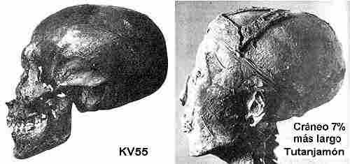 Fig. 13. Craneo de Kv55 i de Tutankhamon.